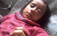 On her 7th birthday, Reem Bekir Shot in Head